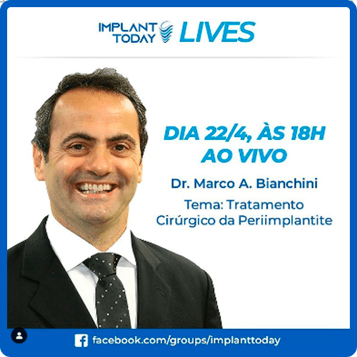 Implant today 22-04-2020 Marco Bianchini
